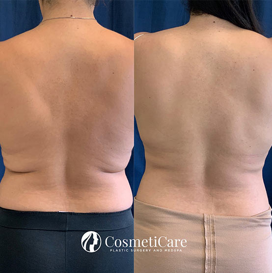 CoolSculpting-Before-and-After-Love-Handles