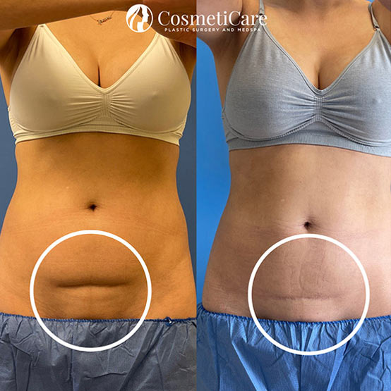 CoolSculpting-Before-and-After-Lower-Stomach-Results