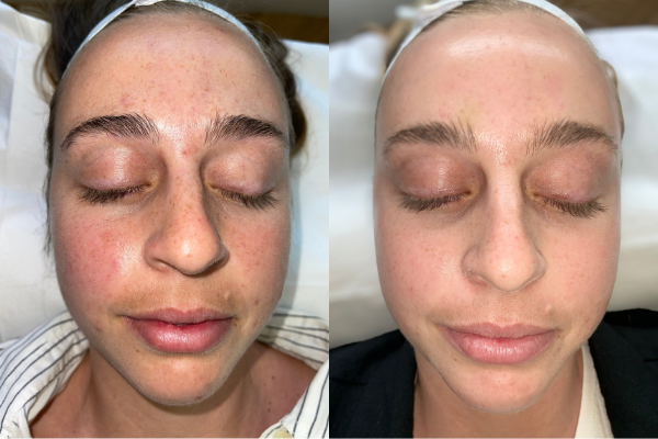 I Kissed My Acne Goodbye at CosmetiCare in Newport Beach