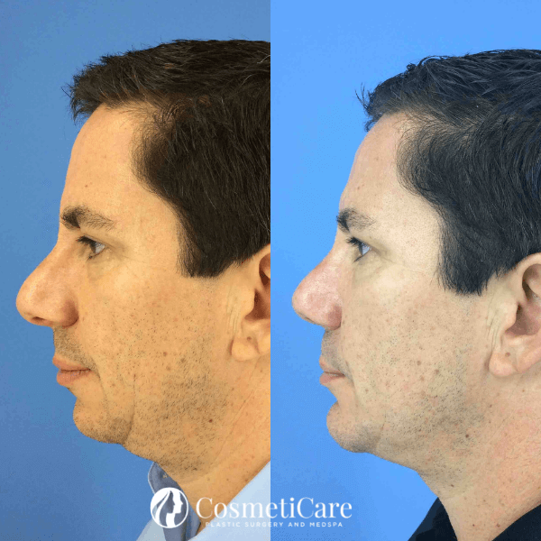 Rhinoplasty Procedure Before and After CosmetiCare