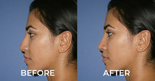 Rhinoplasty-Simulation-Before-and-After