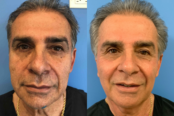 The Non-Surgical Face Lift at CosmetiCare in Newport Beach