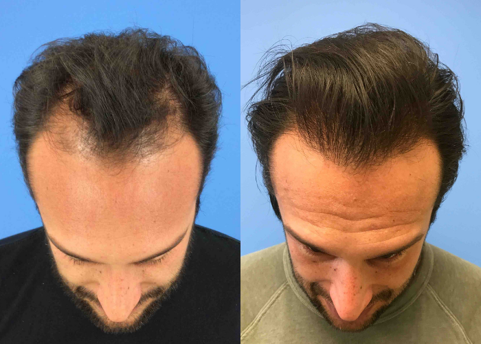 5 Things You Need to Know About Hair Restoration at CosmetiCare in Newport Beach